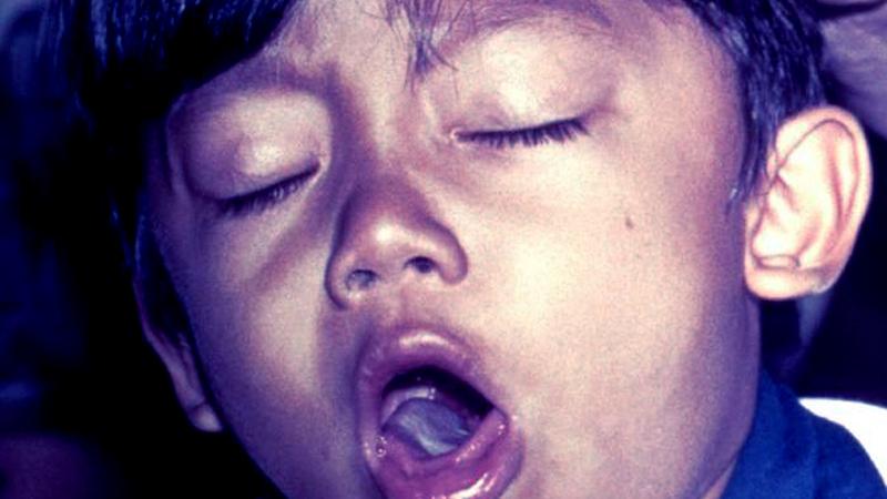 エキナセア 風邪 インフルエンザ
