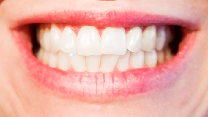 歯周病 βクリプトキサンチン