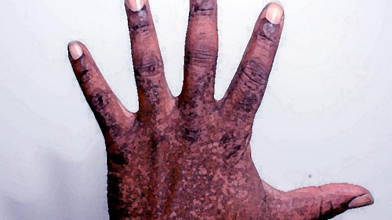 メトヘモグロビン血症  亜硝酸ナトリウム